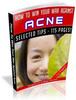 Thumbnail War Against Acne